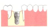 インプラント手術手順